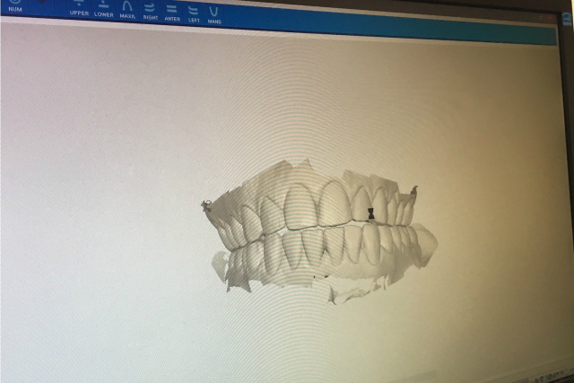 invisalign- before scan